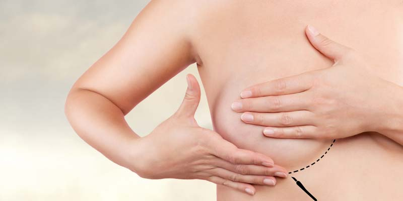 direct to implant breast reconstruction