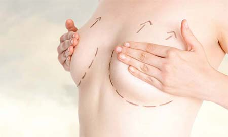 Phoenix Breast Reconstruction Surgery