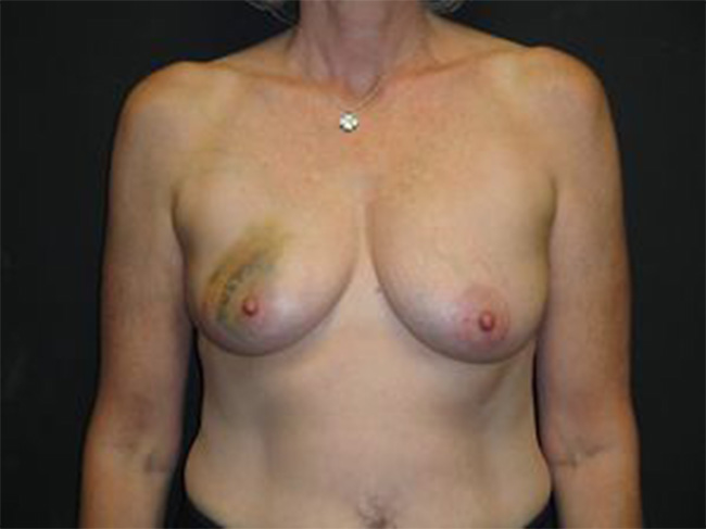 Pain in reconstructed breast